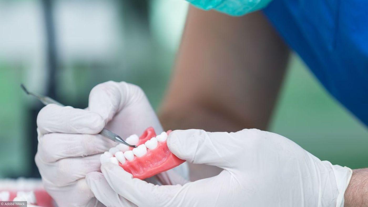 Implant dentaire : Pourquoi le mettre en place ?