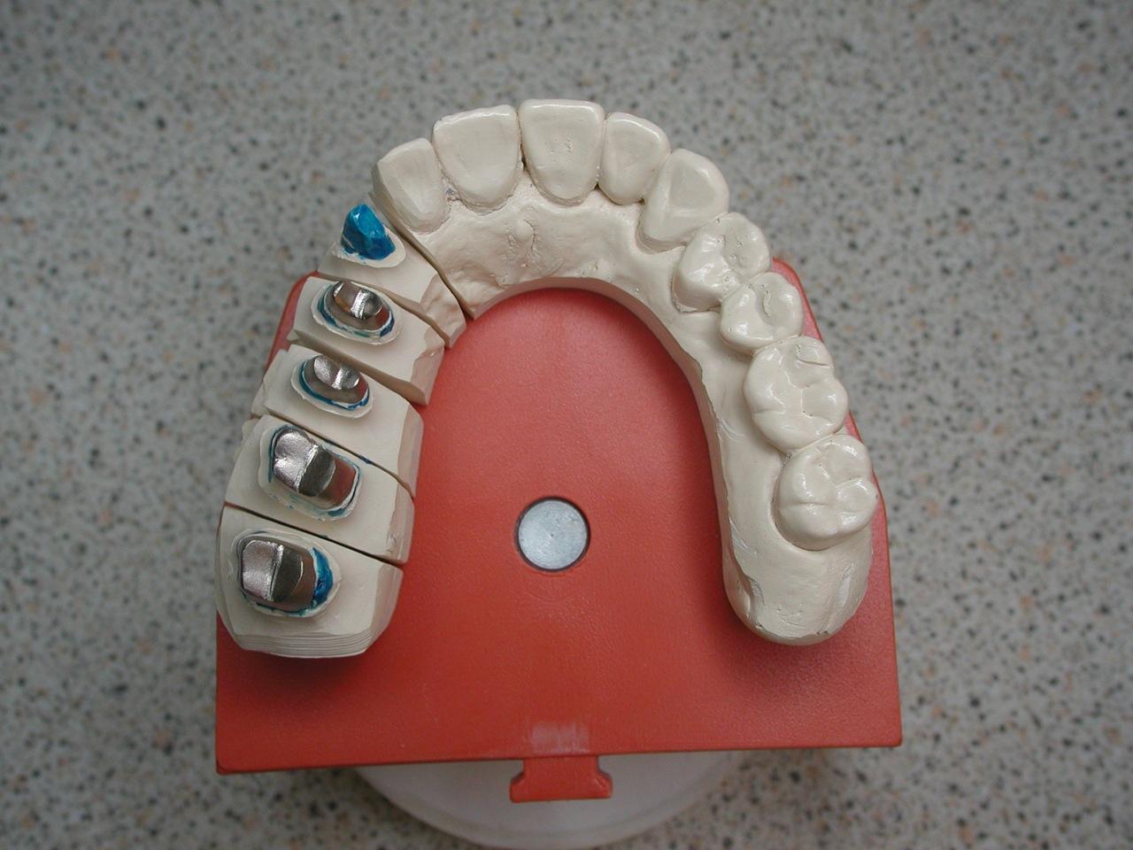 Prothèse dentaire : quels sont ses principaux types ?