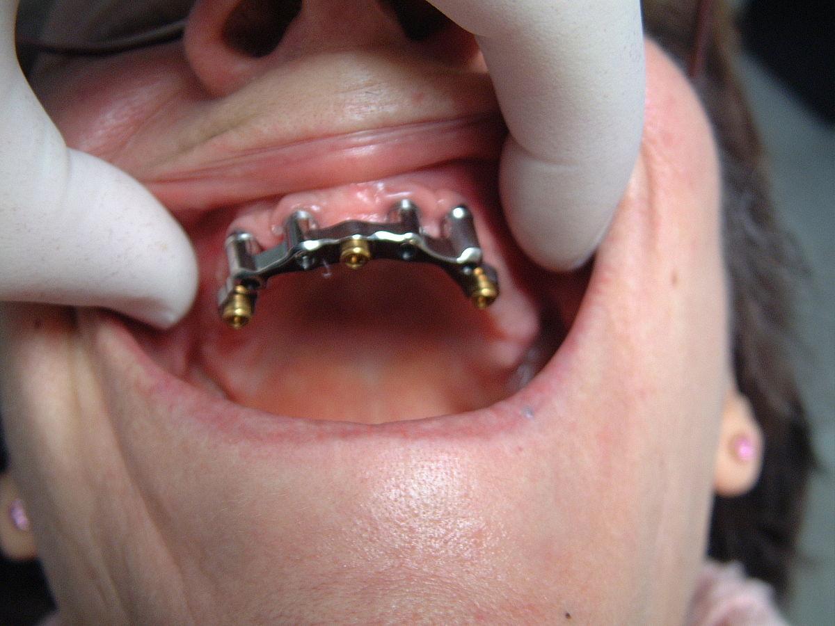 Implant dentaire : une solidité excellente ?