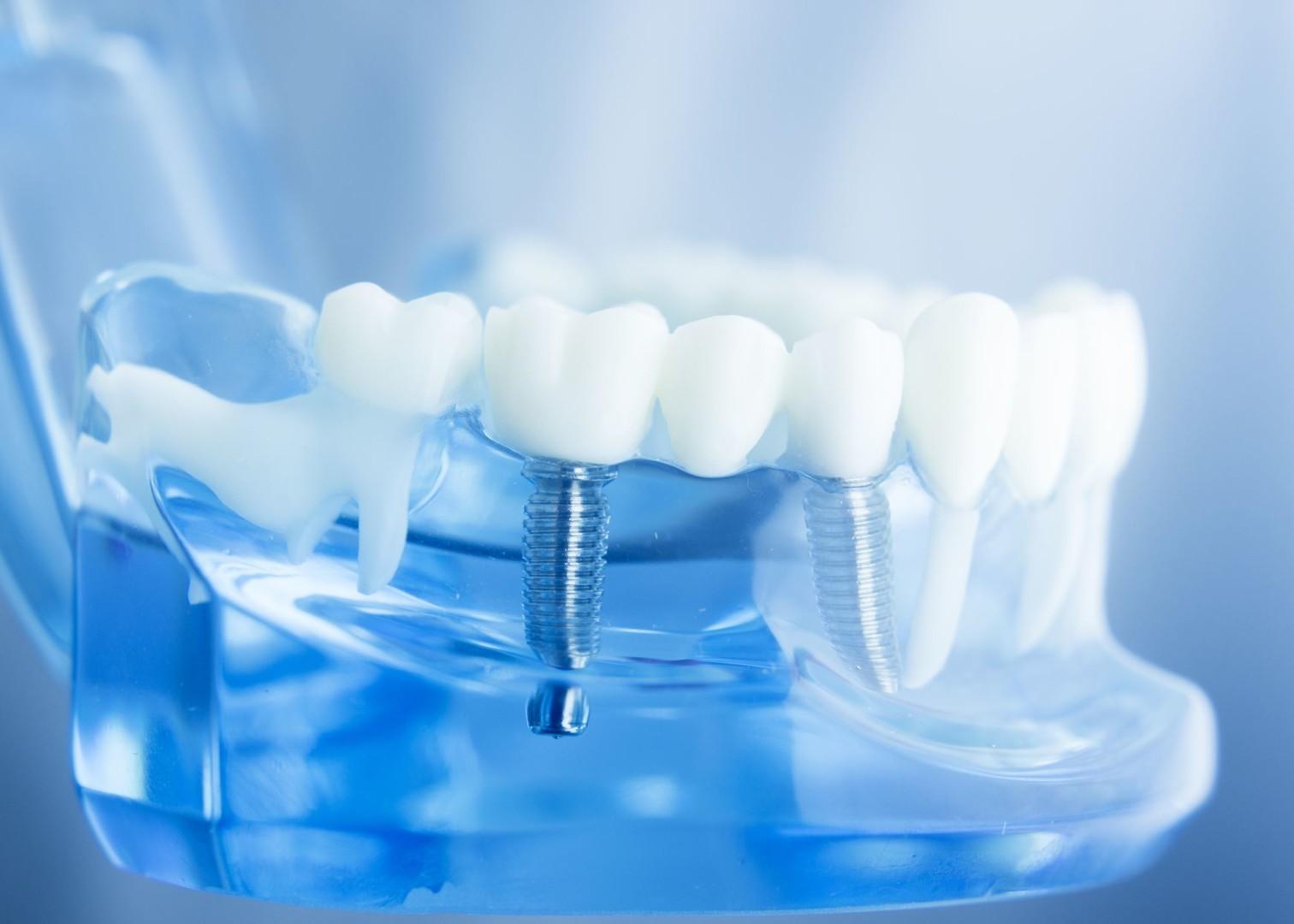 Centre dentaire : une dentition parfaite ?